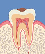 【C1】歯の表面(エナメル質)の虫歯