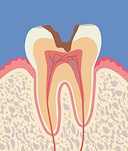 【C2】歯の中(象牙質)の虫歯
