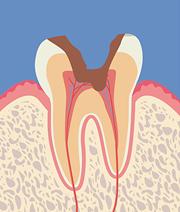 【C3】神経まで達した虫歯