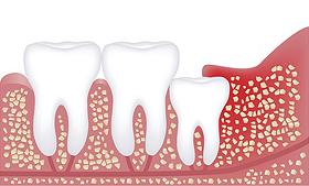 埋まった位置にある歯