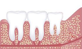 しっかり生えている歯