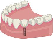 少数歯がインプラントの方
