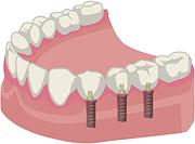 多数歯がインプラントの方