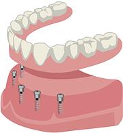 すべての歯が固定性インプラントの方