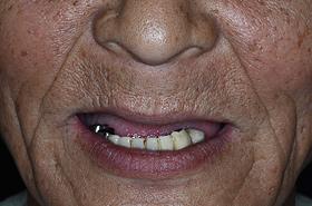 不安定な従来の入れ歯を入れていた頃