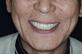 自信みなぎるインプラントオーバーデンチャーの現在(義歯を外した口の中)