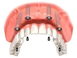 固定式インプラント義歯(ボーンアンカードブリッジ)