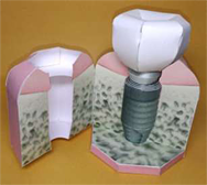 BioHorizons社のテーパードプラスインプラント模型ペーパークラフト