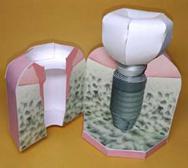 奥歯のインプラント周囲炎模型ペーパークラフト