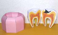 奥歯の虫歯模型ペーパークラフト